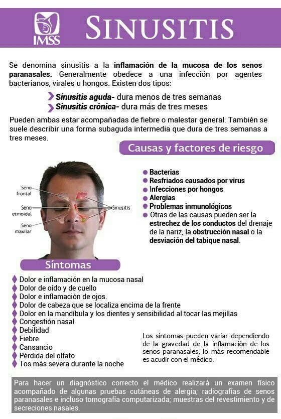 Q hacer para la sinusitis